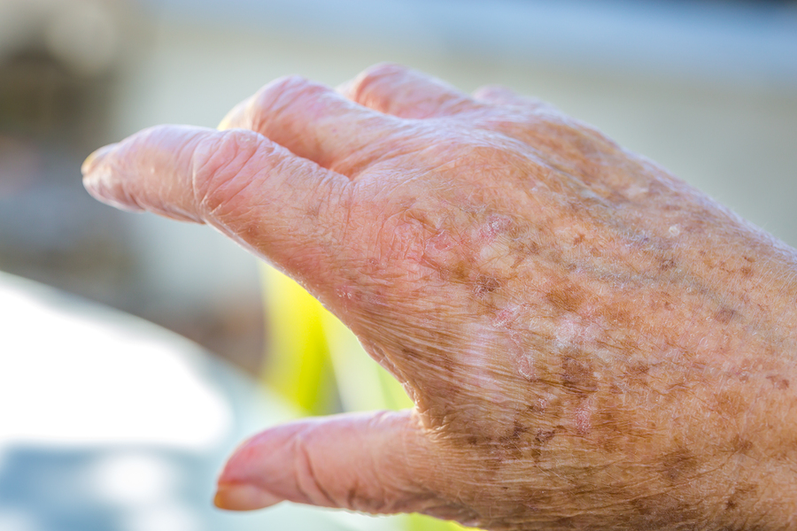 Elder Care in Philadelphia PA: 5 Skin Cancer Myths